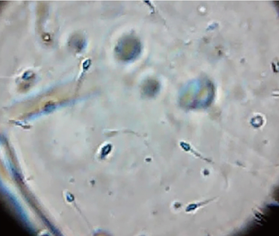 TENGA MEN'S LOUPE テンガ メンズ ルーペ スマホ カメラ 精子観察キット